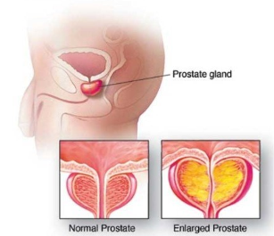 Normal at inflamed sa prostate